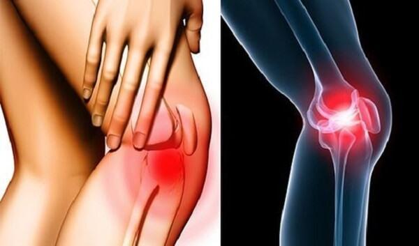 Tìm hiểu phương pháp điều trị thoái hóa khớp gối